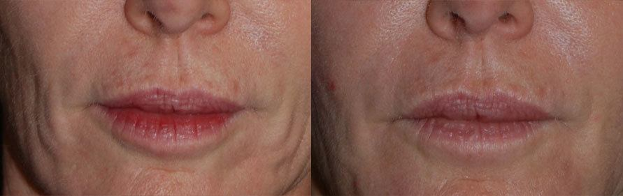 restylane silk before and after