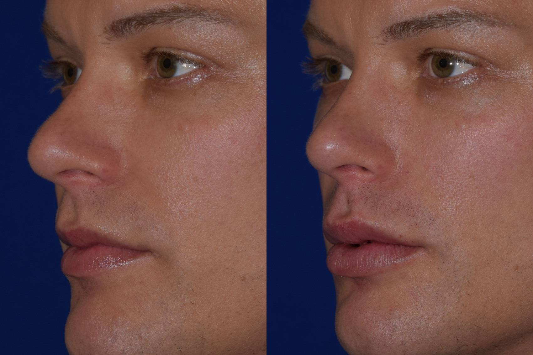 Before and after woman's injection of Juvederm volbella to enhance lips