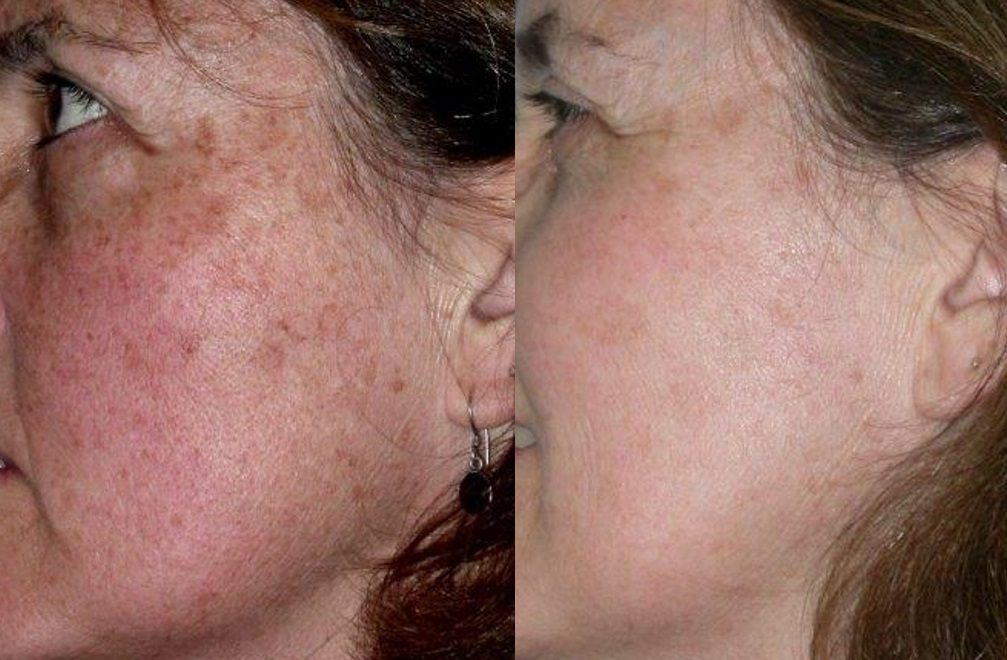 Before and after woman's laser pigmentation facial treatment