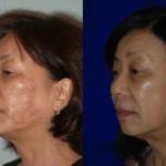 pigment-laser-santa-rosa-hyperpigmentation-bbl-sciton-cynosure