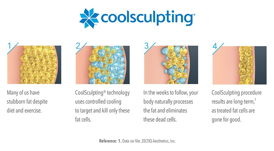 artemedica-coolsculpting