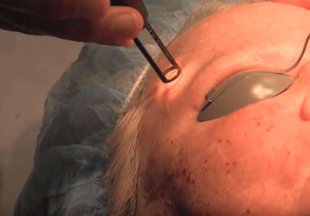Esthetician using laser facial treatment on client's forehead