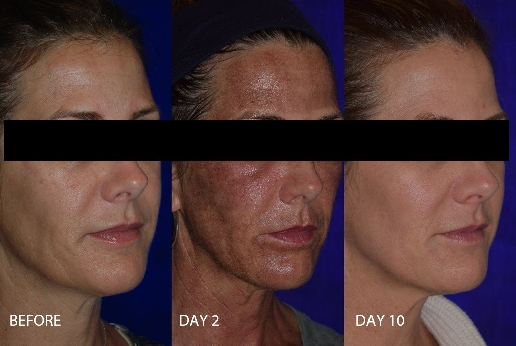 Before and after woman's laser resurfacing treatment