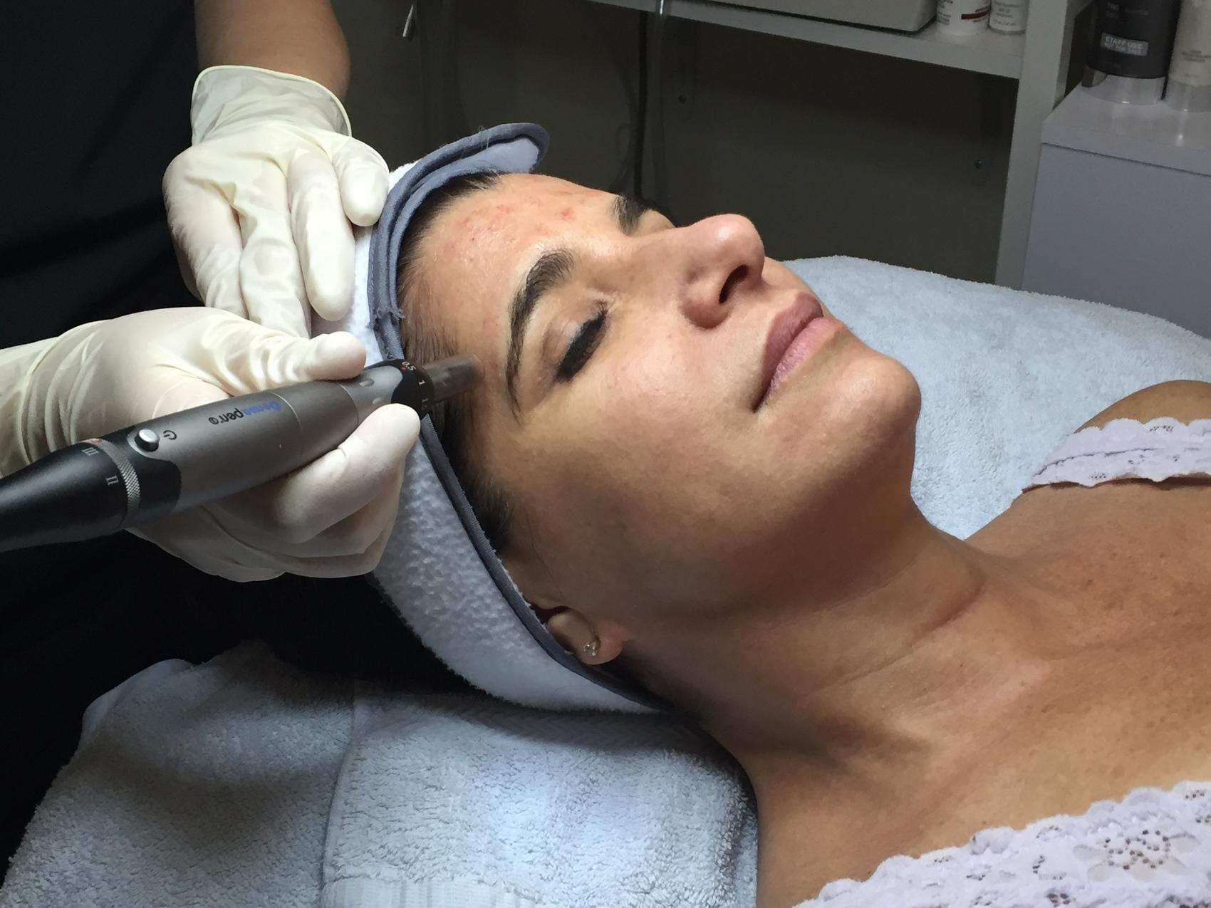 esthetician using pixel peel facial treatment on client's forehead