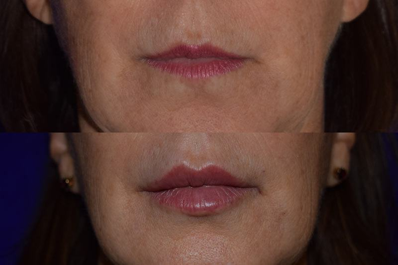 Before and after woman's injection of Juvederm vollure xc to enhance lips