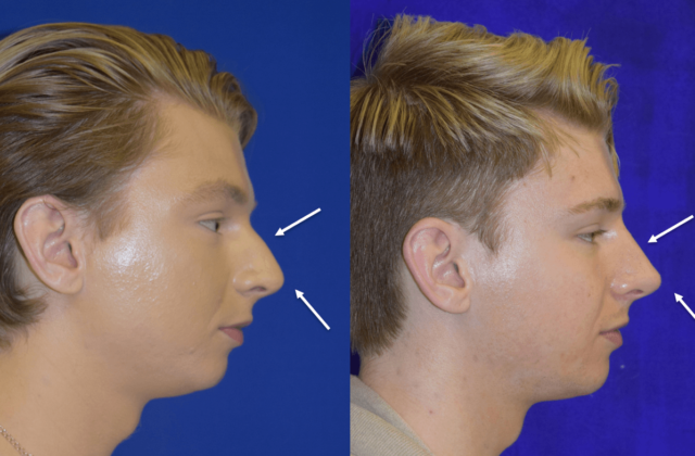 Before and after man's liquid rhinoplasty (nose job)