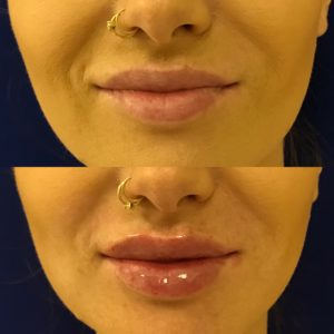 side by side before and after photos of lip filler treatment