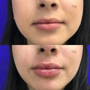 close up of young women's face before and after lip injections