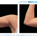 before and after emsculpt photos of arms