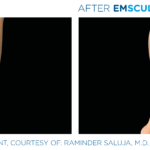 before and after emsculpt photos of calves