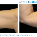 before and after emsculpt photos of biceps