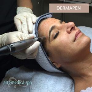 woman receiving a dermapen skin care treatment