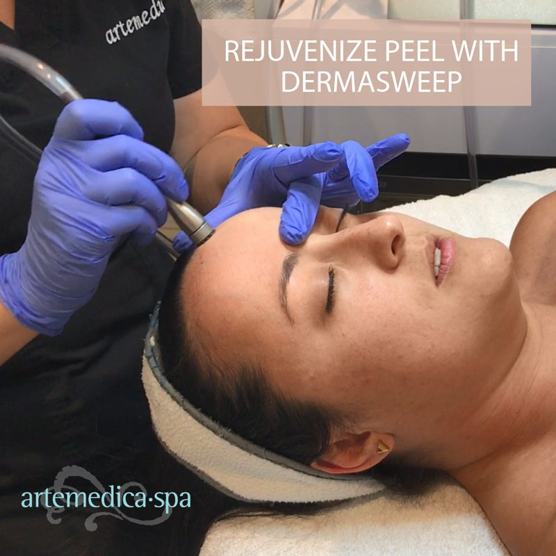 Dermasweep skin care treatment with chemical peel