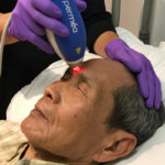 man receiving clear and brilliant laser skin resurfacing treatment