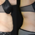 Before and after woman's CoolTone treatment to reduce fat and encourage muscle growth