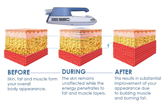 A drawing of what the skin, fat, and muscles look like before, during, and after EmSculpt treatment