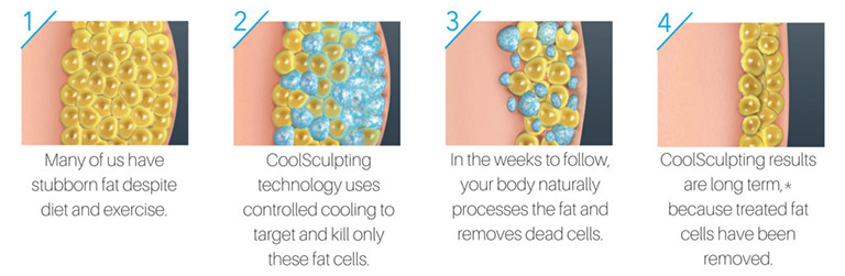 A drawing of what the skin, fat, and muscles look like before, during, and after CoolSculpting treatment