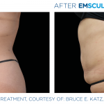 Before and after woman's EmSculpt Neo treatment to reduce fat and encourage muscle growth