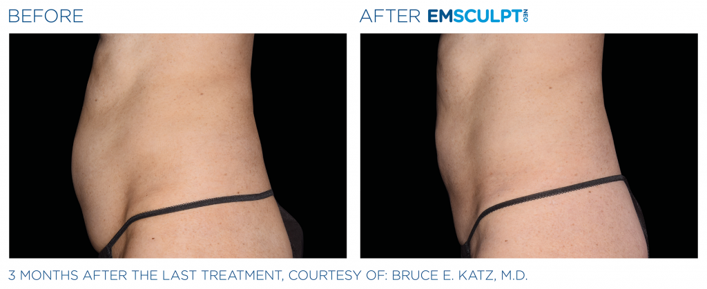 EmSculpt NEO fat burning and muscle building treatments Before and After at Artemedica in Santa Rosa