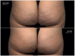 Before and after woman's QWO injection treatment to effectively treat moderate to severe cellulite in a woman's thigh and butt