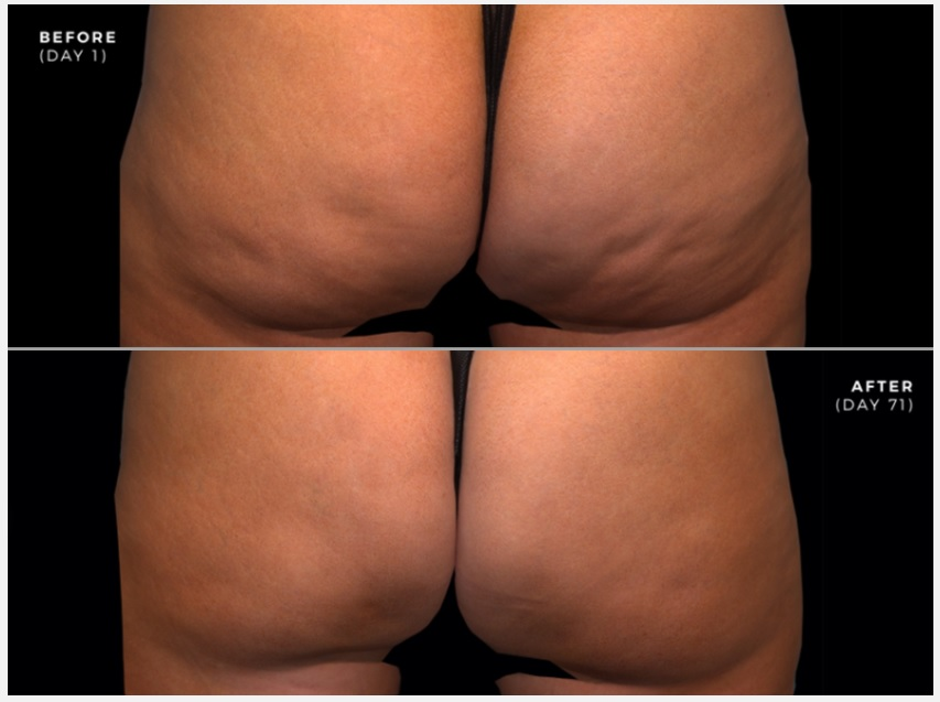 Before and after QWO injections