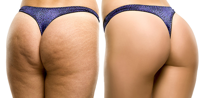 Female buttocks before and after QWO injectable Cellulite treatments at Artemedica