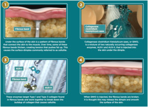 infographic describing how QWO treats cellulite by breaking the fibrous bands that create dimples in the skin's surface