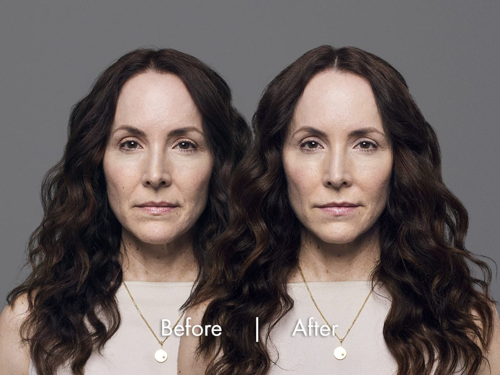 RHA injectable dermal fillers before and after