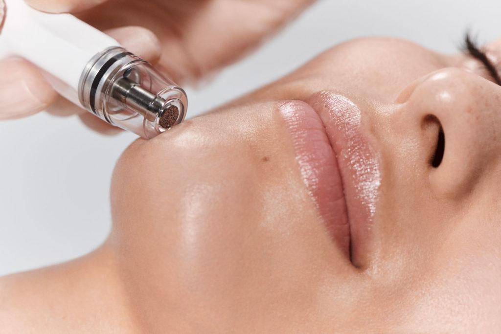 female patient receiving diamond glow facial dermabrasion