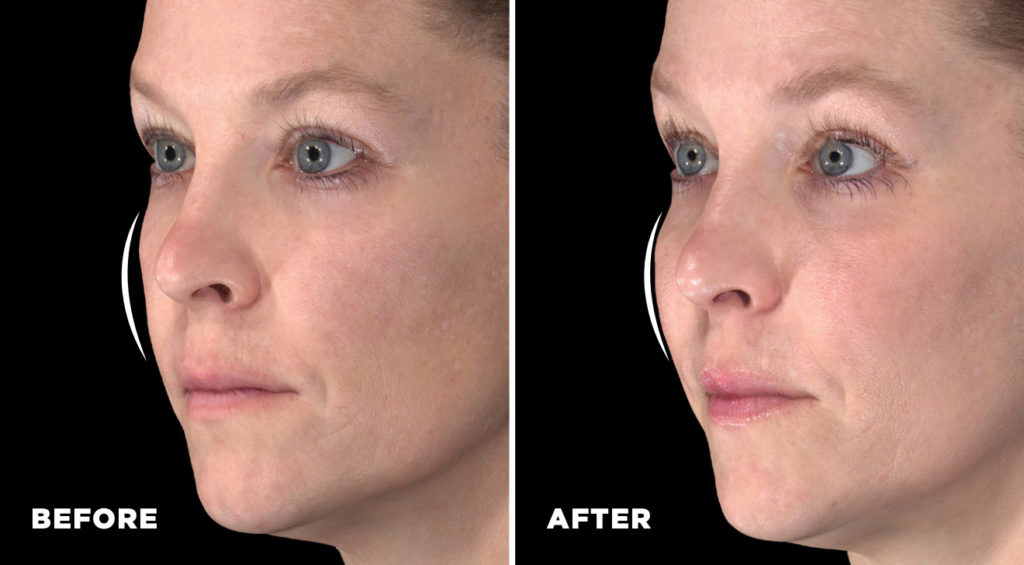 Before and After Injection of Galderma Restylane Contour on white woman showing dramatic natural fullness in cheeks