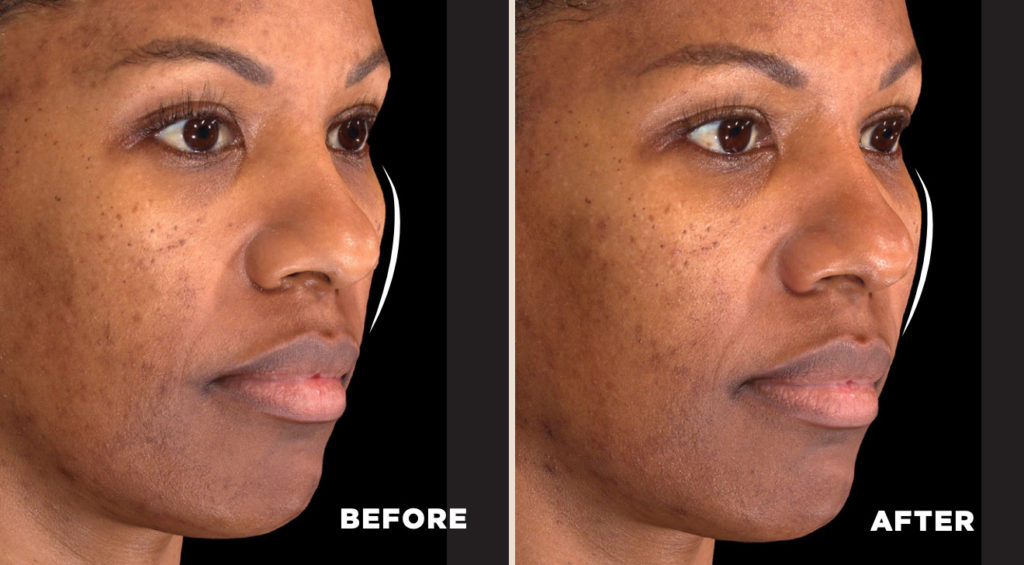 Before and After Injection of Galderma Restylane Contour on African American woman showing dramatic natural volume in midface