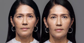 RHA fillers before and after treatment for dynamic wrinkles
